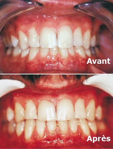 Cas 1 avant et après activateur