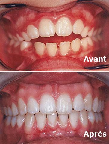 Orthodontie enfant avant et après activateur dentaire