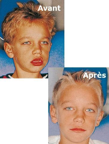 Conditions de réussite traitement orthodontique enfant