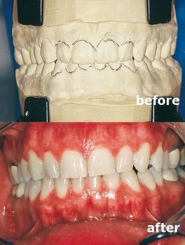 Case 2 before and after