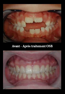 Traitement orthodontique avant/après