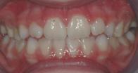 thérapeutique fonctionnelle des dents